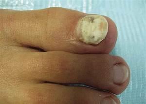 Грибок ног чем лечить в домашних условиях