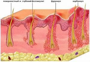 Вирус папилломы человека мазь лечение