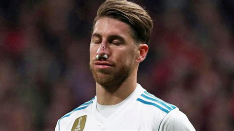 Sergio Ramos won't have surgery and will play with a