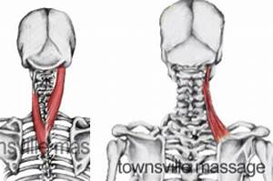 Muscles in the neck: Splenius capitis and cervicis ...