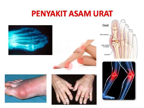 khasiat dan manfaat daun sirsak bagi kesehatan mencegahpenyakit com