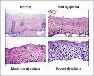 Squamous Dysplasia U2014the Precursor Lesion For Esophageal