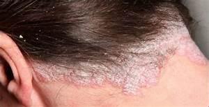 Hair Scalp Psoriasis Natural Remedies Medical Treatments