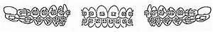 Instructions For Wearing Elastics  U2014 Angle Orthodontics