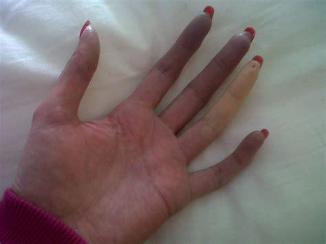Scleroderma And Handling Raynauds Digital Ulcers