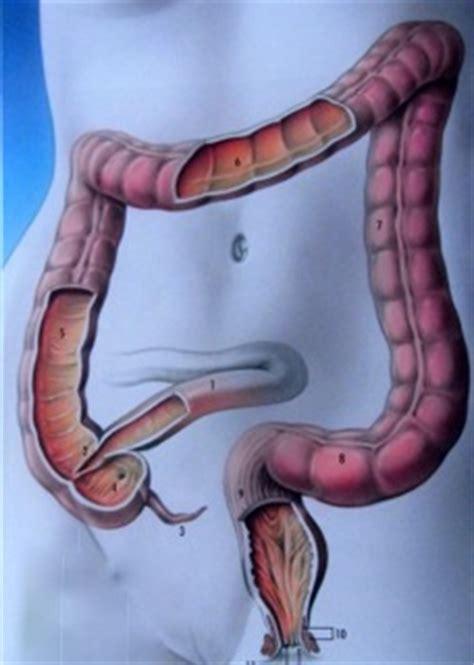 stase stercorale du cadre colique colon