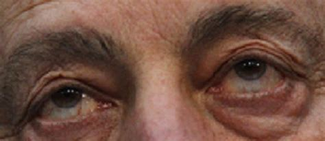 cure for blindness restoring eyesight lost due to diabetes may soon be possible