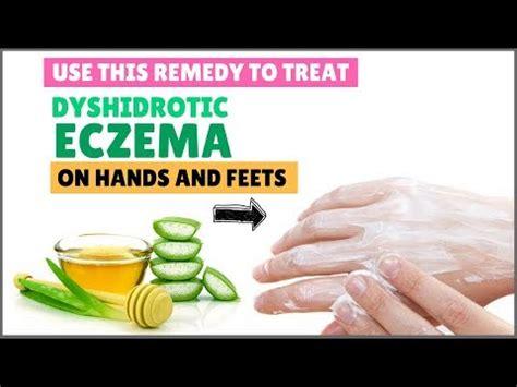 Dyshidrotic Eczema Home Remedies by Dyshidrotic Eczema Treatment Home Remedies For