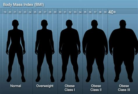 weight loss bariatric surgery slideshow pictures types