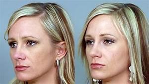 Botox Treatments Lehi
