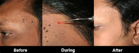 face mole removal india   cost health beauty