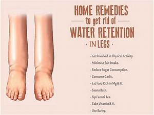 Water Retention In Legs  Symptoms  Causes And Home Remedies