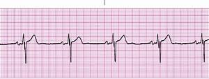 EKG dysrhythmias - StudyBlue