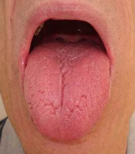 What Does A Healthy Tongue Look Like | www.pixshark.com ...