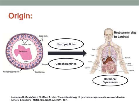 Duodenal Gastrinoma