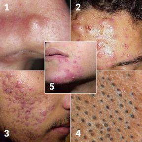 foto de Maladie de peau : comment reconnaître les différents