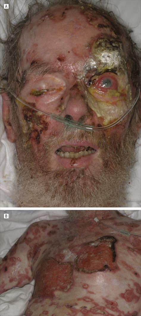 fatal cytotoxic cutaneous lymphoma presenting