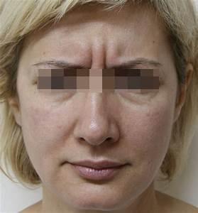 От чего разглаживаются морщины вокруг глаз