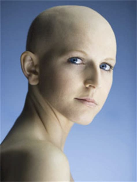 coping  chemotherapy induced hair loss
