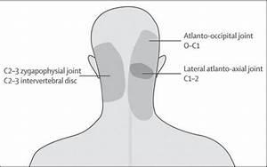 Headaches And Neck Pain Or Cervicogenic Headache