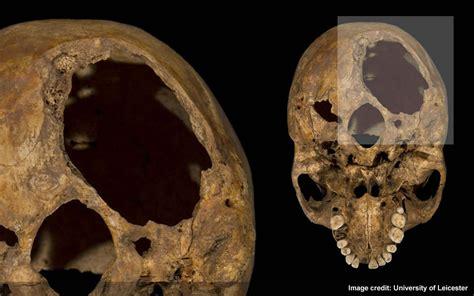 richard iii osteology skull injuries holewound