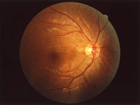 Fundus (eye) Wikipedia