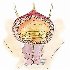 Лечение простатиты у мужчин народными средствами