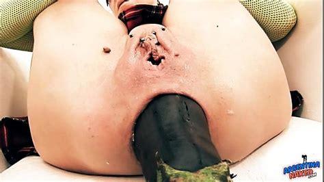 Insanely Huge Prolapse Cervix Exposure Eggplant Penetratio Xnxx