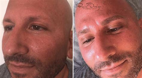 just natural alopecia hair loss microblading for men natural look realistic hair strokes