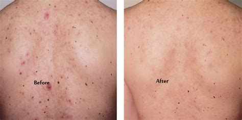 best treatment for pimples pimples on back meaning causes and fast treatments