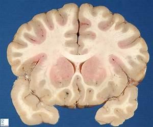 Brain Frontal Section 3 - Humpath Com