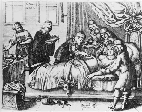 Historical Artwork Of A Caesarean Section