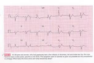 Abnormal T Waves On EKG