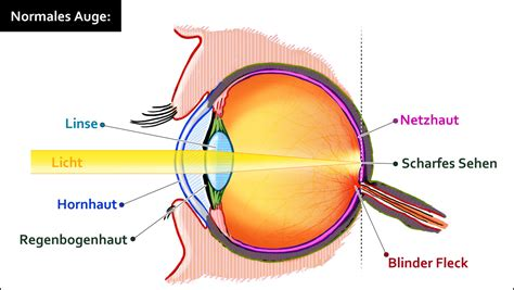 brillen und sehhilfen
