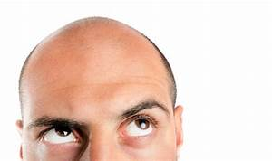 Baldness, Thinning & Hair Loss in Men Reasons & Causes ...