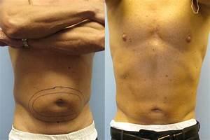 Smart Lipo - Berman Cosmetic Surgery