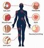Symptoms and Treatment   Dengue   CDC