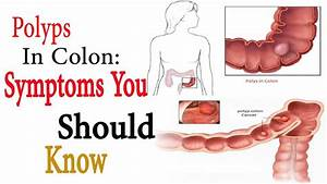 Diagram For Colon Cancer Colon