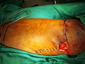 AVULSION INJURY THIGH - DEBRIDEMENT AND GRAFTING - OUTCOME ...