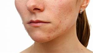 Is There Any New Treatment For Adult Acne