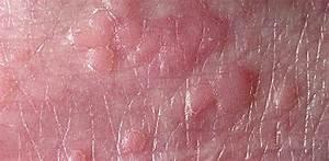 Лечение вируса папилломы человека шейки матки