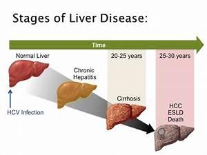 Hepatitis C and... Hepatitis C
