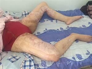 Контрактуры коленного сустава болью