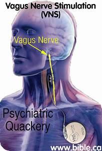 Vagus Nerve Stimulation  Vns   Mental Illness Depression