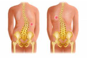 Артроза суставов лечение