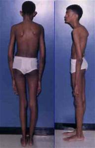 Images: Marfan Syndrome