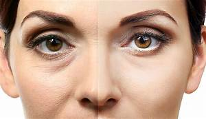 Augen Schinken