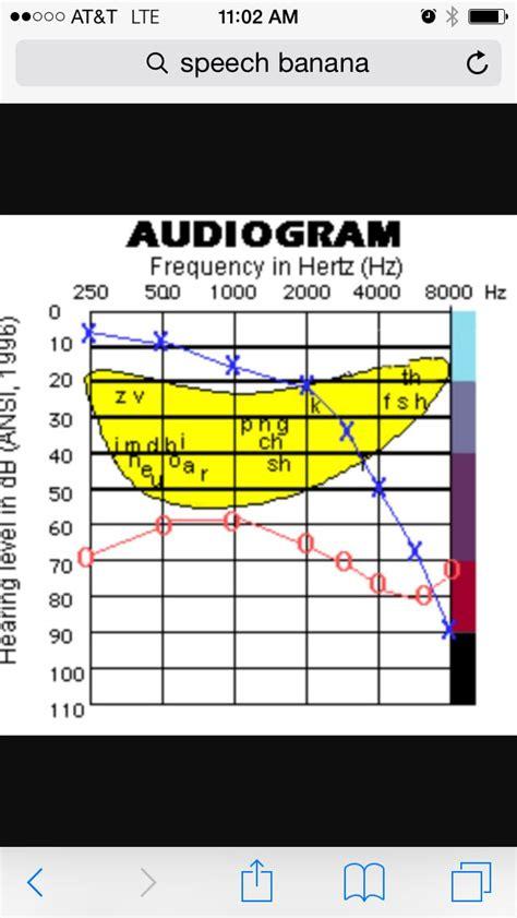 images  hearing  speech science  pinterest