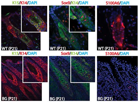abnormal hair follicle development  altered cell fate