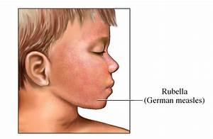 Rubella (German Measles) Rash